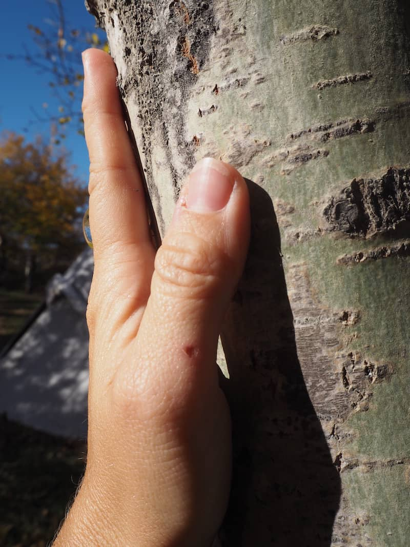 "... or using birch tree ""powder"" off a tree's bark as sun protection!"